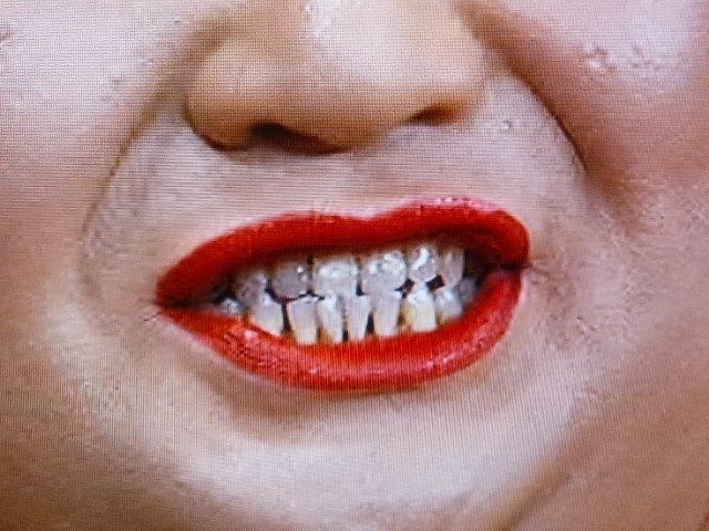 マツコデラックスの下の歯
