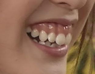 戸田恵梨香 歯茎