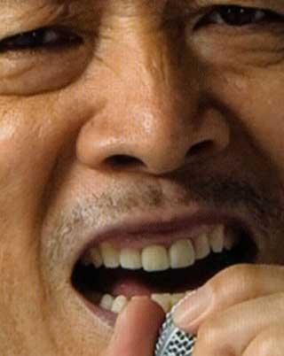 矢沢永吉 差し歯