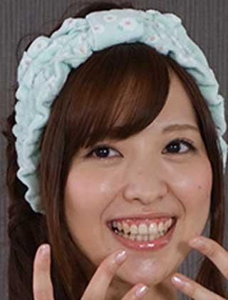 佳村はるか 歯茎と前歯の写真