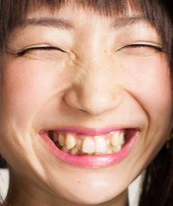 有明ゆな 歯
