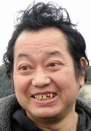野村貴仁 前歯の写真