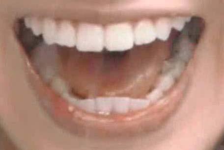 桜井玲香 歯