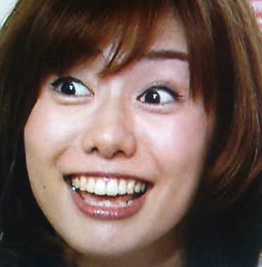 山崎夕貴の銀歯