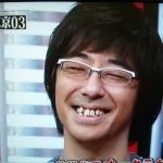 東京03の豊本明長さんの前歯の画像