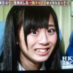 HKT48の坂口理子さんの前歯や歯並び(矮小歯解消)