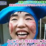 ゆりやんレトリィバァさんの前歯や歯並び(ガミースマイル)