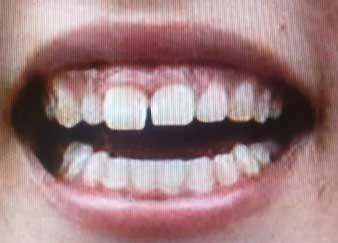 ゆりやんレトリィバァ 前歯の写真