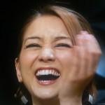 SHELLYさんの前歯の画像