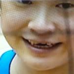 宮下遥選手の折れた前歯と治療後の前歯の画像