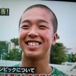 中村駿太選手の前歯や歯茎や歯並び