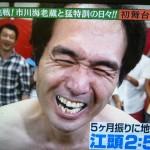 江頭2:50さんの前歯の画像(保険の差し歯)