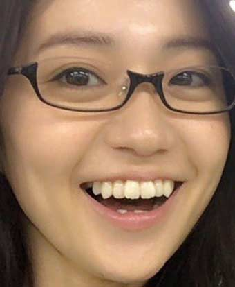 大島優子 前歯