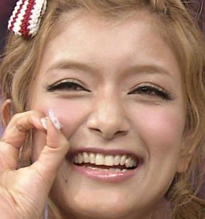 ROLA 差し歯