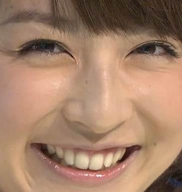 平井理央 歯並び