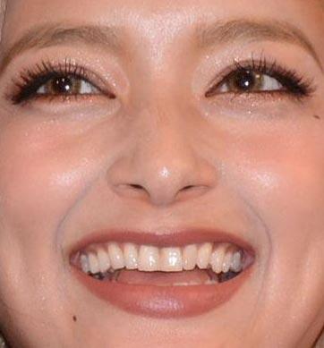 ROLA 前歯