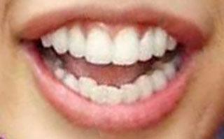 板野 歯列矯正した前歯