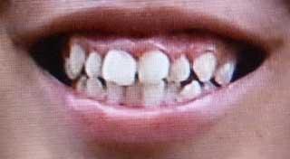 中村駿太 前歯の写真