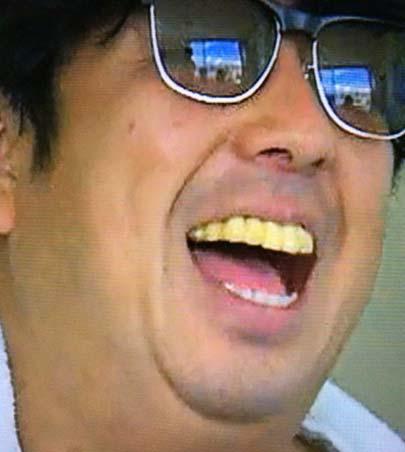 バナナマン 日村 黄色い歯