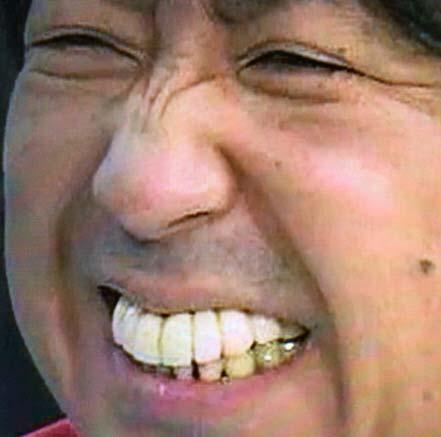 バナナマン 日村 出っ歯