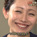 安藤美姫選手の前歯や歯並びを批評(ガミースマイル)