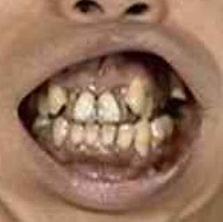バナナマン 日村 前歯