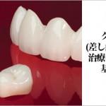 クラウン(差し歯・被せ物)治療についての基礎知識