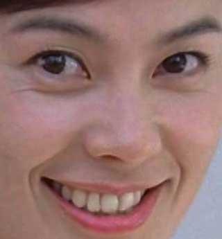江角マキコ 歯