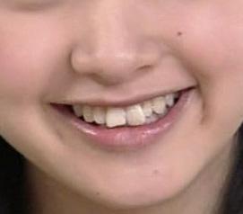 剛力彩芽 前歯