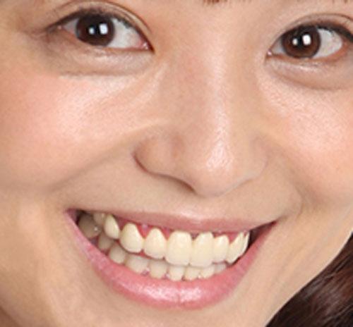 金田朋子 差し歯