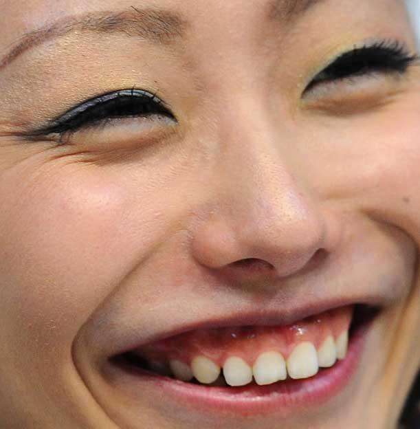 安藤美姫 前歯の写真