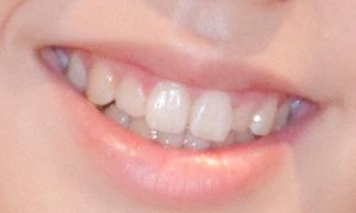峯岸みなみ 前歯の画像