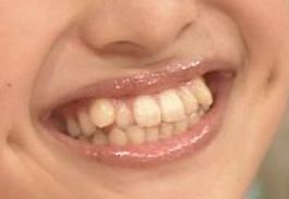 百田夏菜子 前歯
