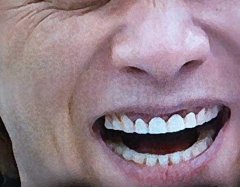 中居正広 前歯