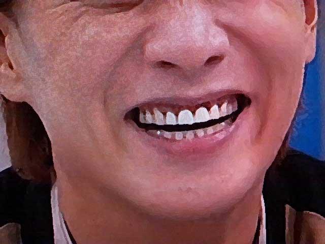 中居正広 差し歯