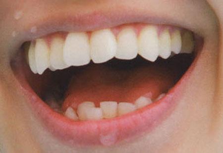 大島優子 前歯の写真