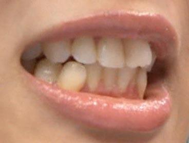 指原莉乃 前歯の画像