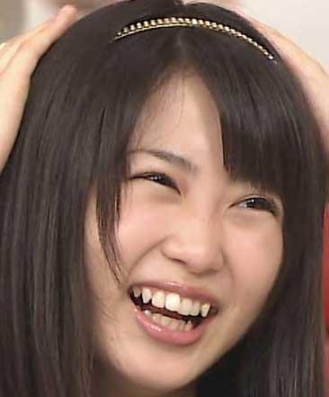 志田未来 捻転歯