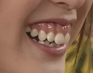 戸田恵梨香さんの前歯と歯茎を評論(歯茎整形?) - 僕の審美 ...
