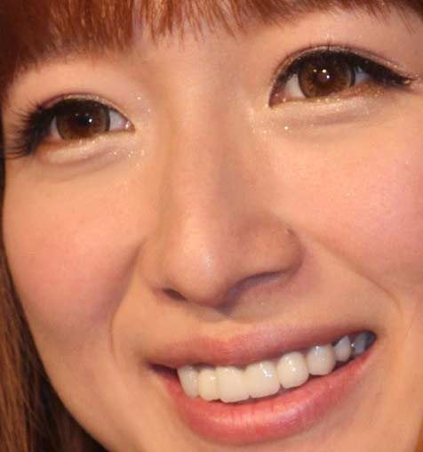 辻希美 歯