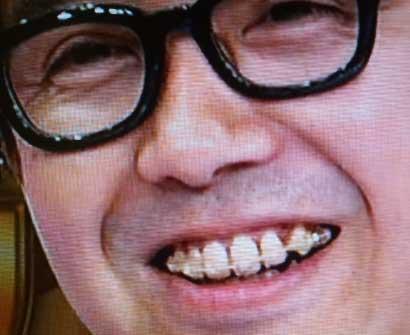 矢作兼の前歯