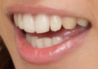吉木りさ 前歯の画像