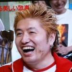 吉田豪さんの前歯や歯並び(虫歯・詰め物)