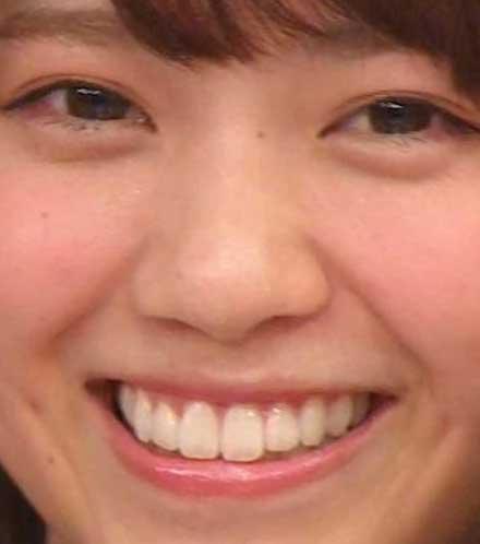 西野七瀬 前歯の写真