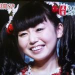 鈴木まりえさんの前歯の画像(保険差し歯)
