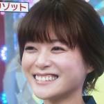 上野樹里さんの前歯の画像(被せ物・差し歯)