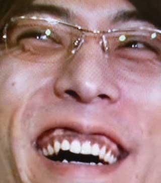 ジャイアント白田 歯茎