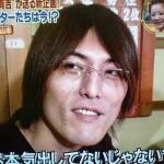 ジャイアント白田さんの前歯や歯並び(ガミースマイル)