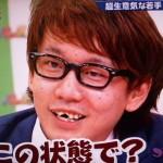 三四郎の小宮浩信さんの前歯を評論(折れた前歯を治す)