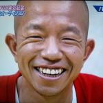 小峠英二さんの前歯と歯並び(保険の差し歯)